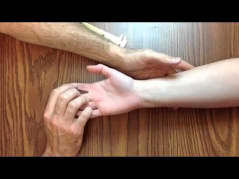 Hand Exam For Carpal Tunnel Syndrome