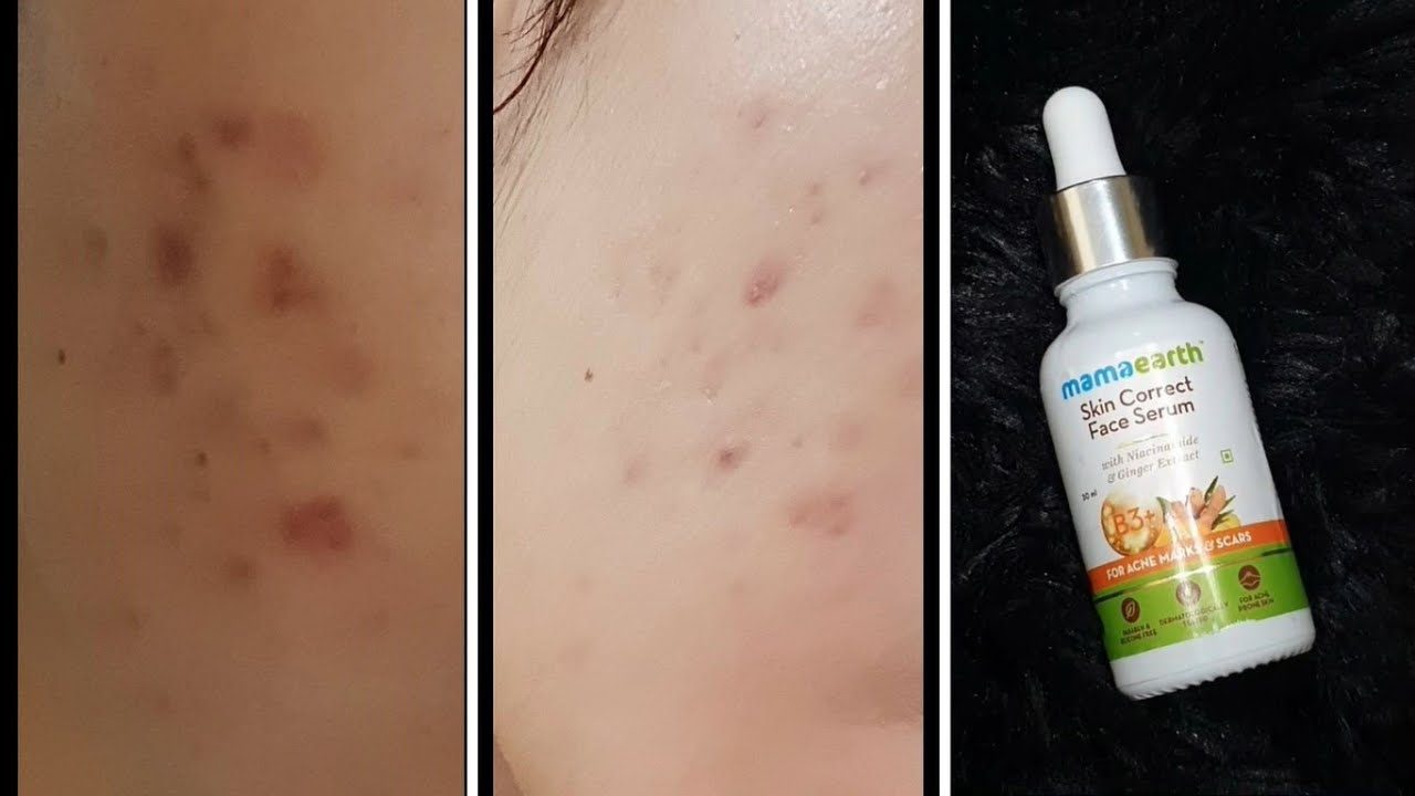 MAMA EARTH SKIN CORRECT SERUM HONEST REVIEW   FOR ACNE ...