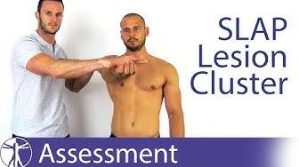 SLAP Lesion Cluster