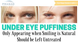Puffiness Under Eyes Only Appear When Smiling Do Not Need Cosmetic Treatment