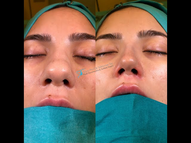Celebrity nose job before and after
