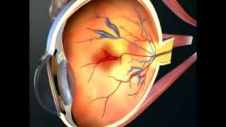 DTS Hypertension Video Animation 1