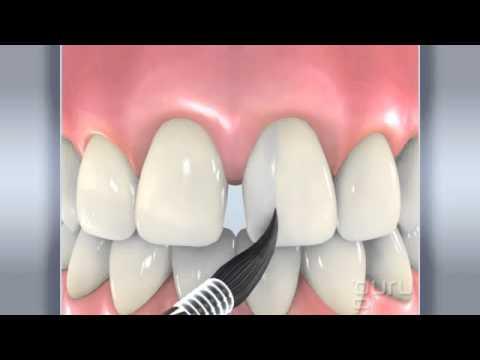 Избавление от щелей в зубах