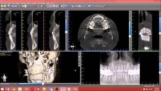 Blue Sky Plan Cone Beam CT Implant Planning Software