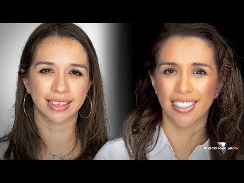 Mom Gets Incredibil™ Cosmetic Makeover! Total Transformation By Brighter Image Lab!