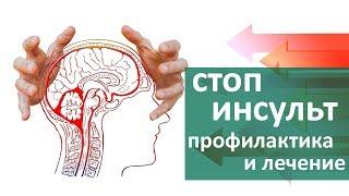 Инсульт головного мозга. 😨 Как не допустить развитие инсульта головного мозга. ЦЭЛТ