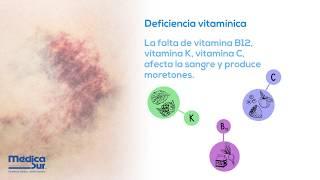 Fáciles? hematomas ¿Qué causan vitaminas