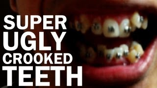 Ugly Crooked Teeth Got Braces - Vlog #7 Keith Varias