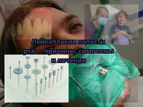 Лейкоплакия полости рта — причины, симптомы и лечение