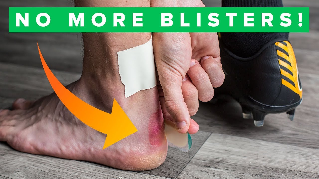 images 5 Ways To Keep Your Feet Blister Free This Summer