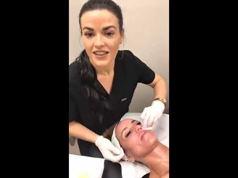 PRP Vampire Facial with Nurse Injector Shelby Miller