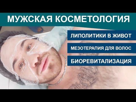 МУЖСКАЯ косметология: мезотерапия, биоревитализация, ЛИПОЛИТИКИ