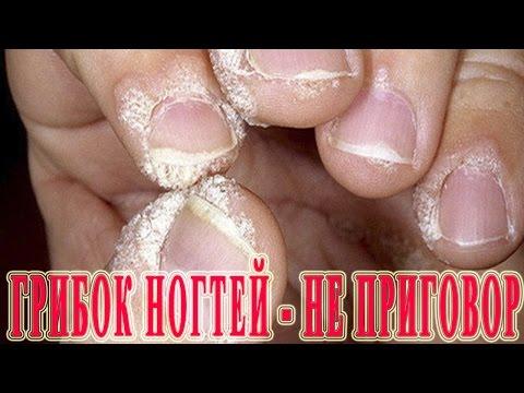★Онихомикоз - НЕ ПРИГОВОР! Лечение грибка ногтя Запущенная Форма. Средства по избавлению от грибка.