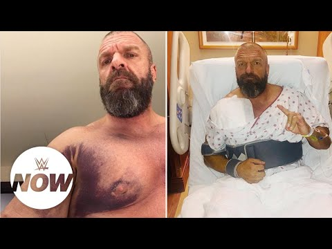 Superstars wish Triple H a speedy recovery: WWE Now
