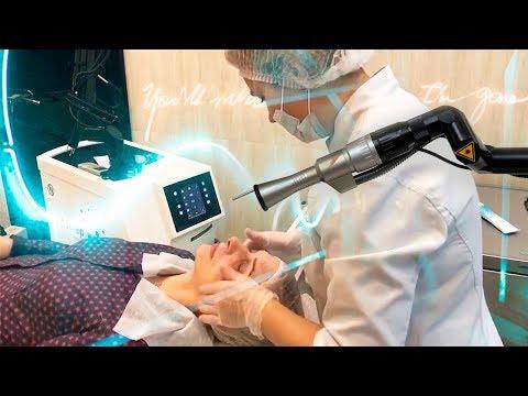 Лазерная шлифовка лица Фракционный фототермолиз на Эрбиевом лазере Asclepion Dermablate Effect MCL31