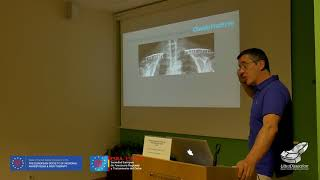 Clavícula pectoral fascia block Luis Valdés | UltraDissection