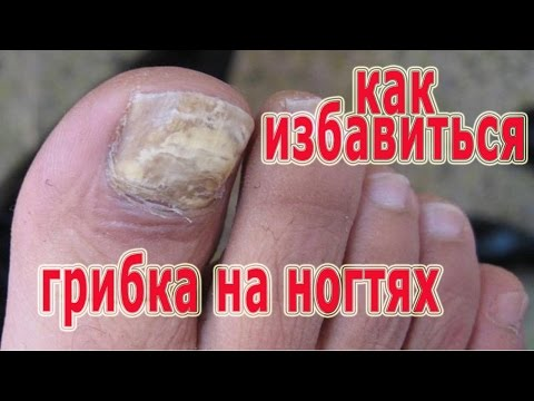 Эффективное лечение грибка ногтей на ногах народными