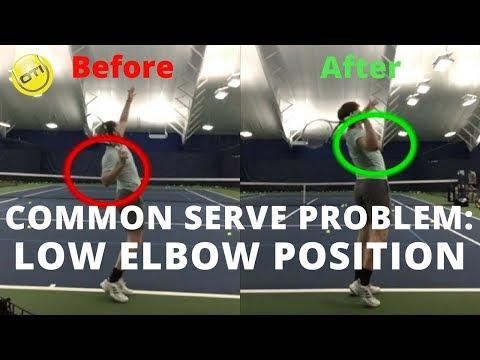 Tennis Serve Technique Problem: Low Elbow Position