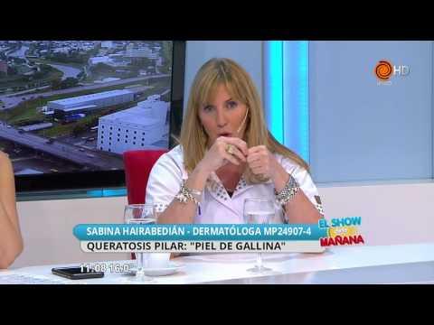 Piel de gallina Dra Sabina Hairabedián
