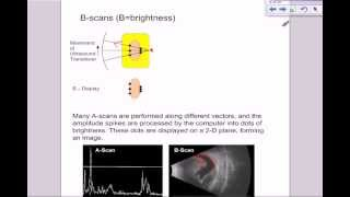 A level medical physics - ultrasound part 2  types of scan, A-scans, B-scans and M-scans
