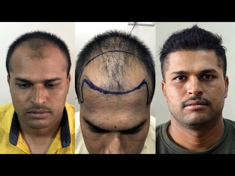 safe-hair-transplant-result-2019-|-best-fue-hair-transplant-result-in-india-|-new-roots-hair-clinic