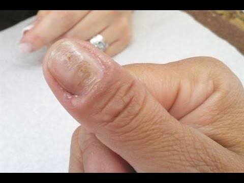 What Causes Of Ridges In Your Finger And Toenails Here Are The Answer