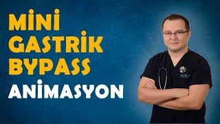 Mini Gastrik Bypass animasyon - Op. Dr. Fakı AKIN