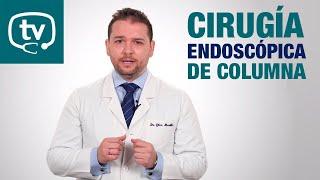 ¿Qué es la cirugía endoscópica de columna?