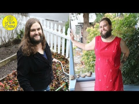 Bearded Woman Claims She's Never Felt Hotter Than After Growing Facial Hair - 동영상