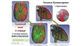 постер к видео NAYUTA Результаты применения продукции