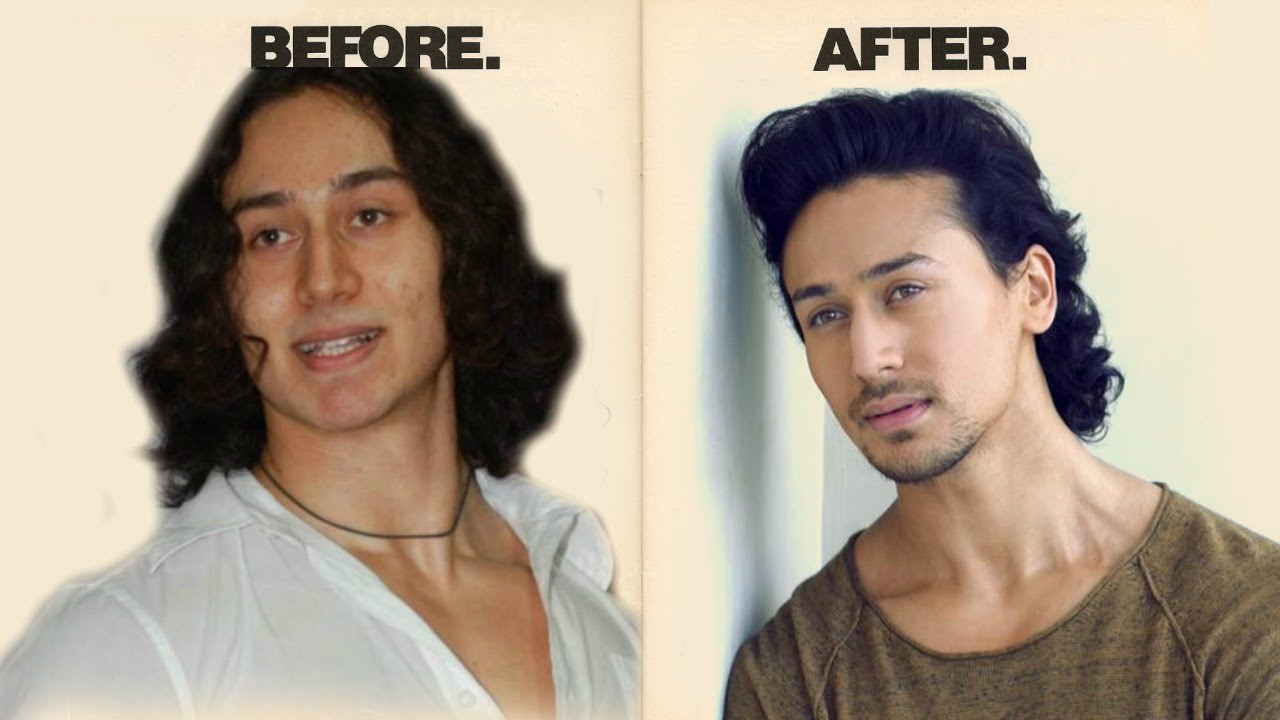 tiger shroff face surgery before and after photos !! - youtube
