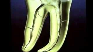 Клиффорд Раддл, Нехирургическое перелечивание в эндодонтии.