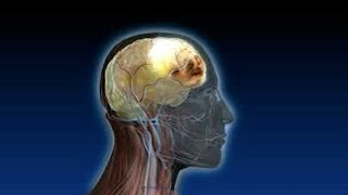 What is a Subdural Hematoma or Blood on the Brain?
