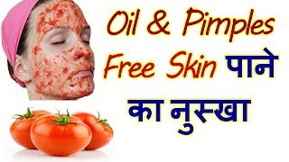 amazing uses of Tomatoes For Skin  In Hindi beauty Benefits Of Tomato
