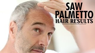 Saw Palmetto Hair Loss Results - Does it Help Grow Hair?