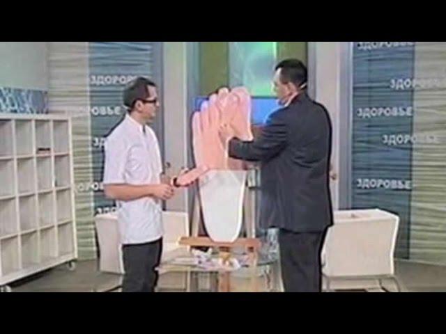 Как остановить рост косточки на большом пальце стопы