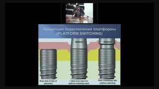 видео Дентальная имплантация