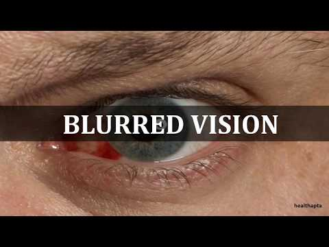 HERPES SIMPLEX EYE INFECTIONS