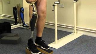 Introducing the Genium Microprocessor Controlled Knee