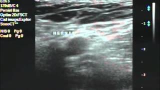 Pubalgie: si Hernie inguinale en échographie = Adhésiolyse manuelle contre-indiquée
