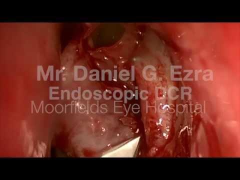 Endoscopic DCR Lacrimal Surgery - Moorfields Eye Hospital