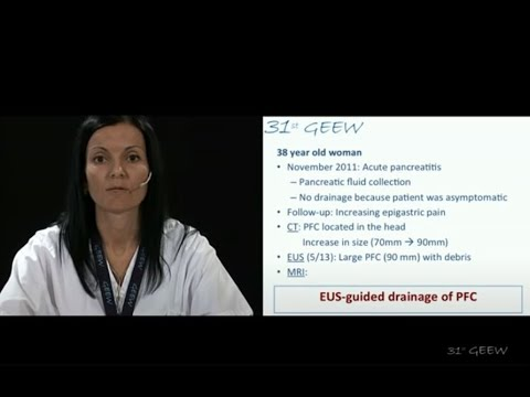 EUS-guided drainage of pancreatic fluid collection