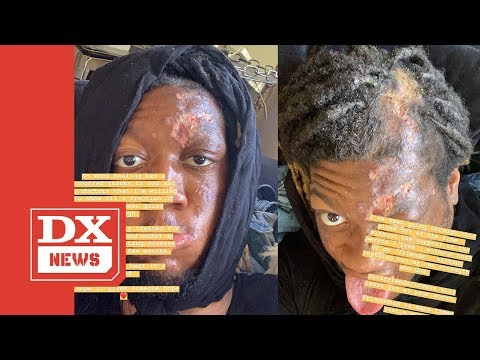 Kydd Joe - Rapper OG Maco Opens Up About Contracting Flesh Eating Disease!