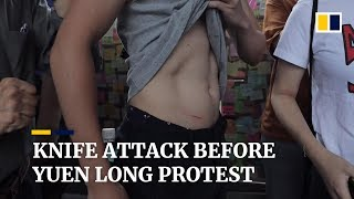 Witness describes knife attack on protester before start of march in Hong Kong's Yuen Long