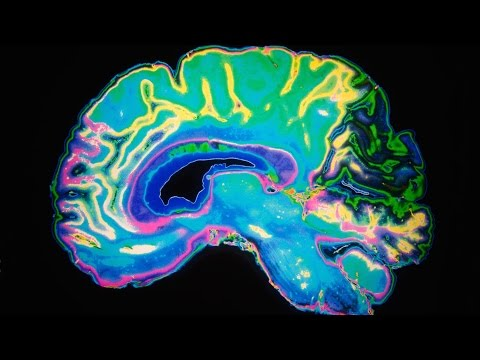 Ultrasound Treatment Could Help Restore Memory Of Alzheimer's Patients