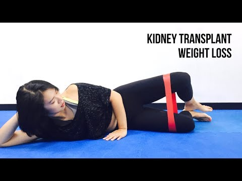 Losing Weight After Kidney Transplant - Kidney Transplant Recovery