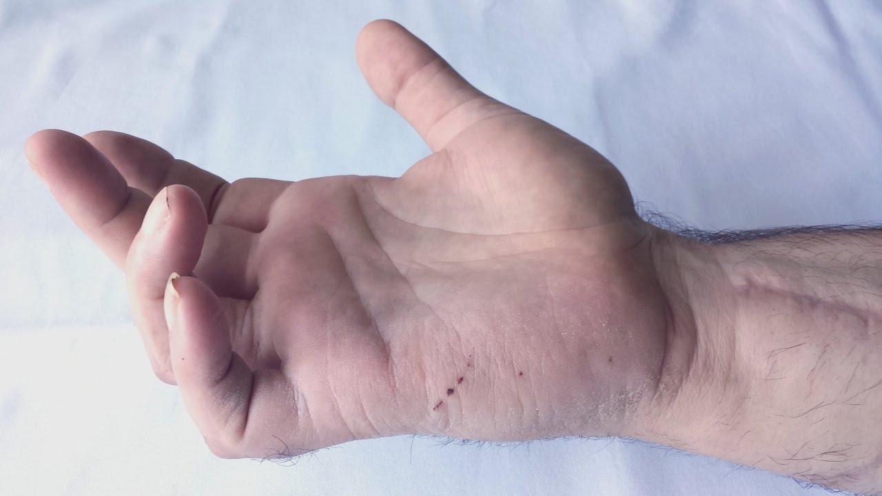 Grifa Ulnara in paralizia de nerv ulnar   Claw hand - YouTube