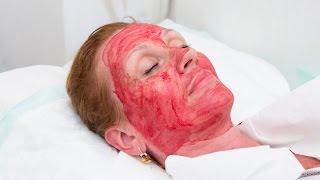 The Leech Face-Lift: Hollywood's Creepy Cosmetic Craze