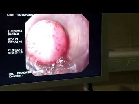Endoscopic Variceal Ligation ( EVL ).           Dr Prakash D