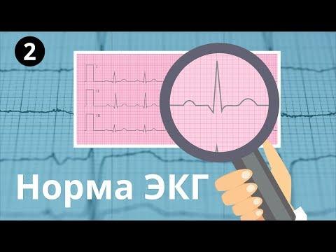 Болит сердце а кардиограмма нормальная